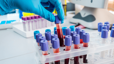 Photo of Haemophilia B blood treatment with Rare FIX Inhibitor